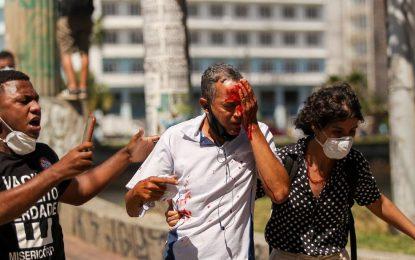 Atingidos por balas de borracha no Recife perdem parte da visão